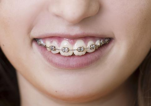 Dental braces have been linked to the incidence of anorexia