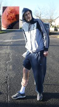 James Campbell shows his injuries to his knee, after he was shot outside 14 Cushlawn Drive, Tallaght