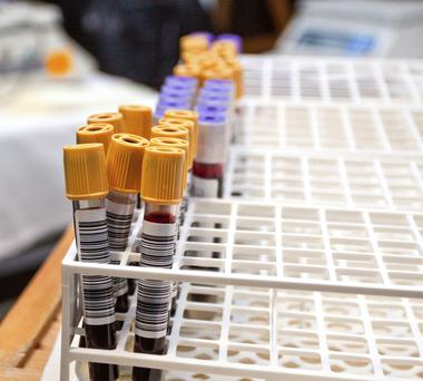 New research has found that a man's blood type influences his chances of prostate cancer recurring