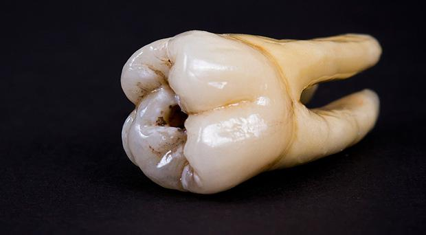 A human tooth was found in food, reported to the FSA.