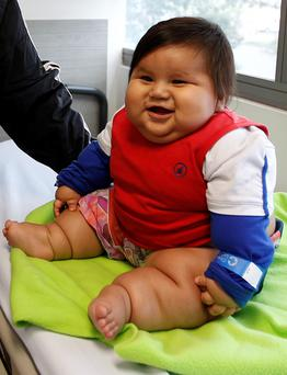 Eight-month old Santiago Mendoza sits at a clinic in Bogota, Colombia.