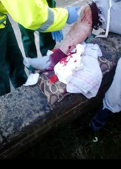 This is a picture of a mans injury after he was shot in the leg in Drogheda's Moneymore Estate.