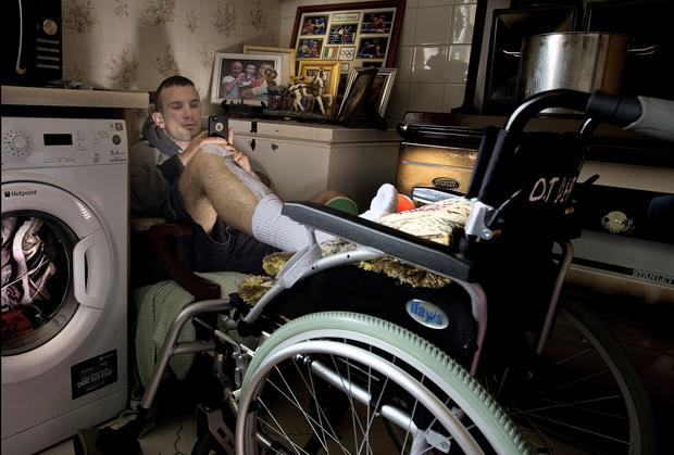 John Joe Nevin recuperating at home in Mullingar after his legs were broken in an attack. Photo: David Conachy