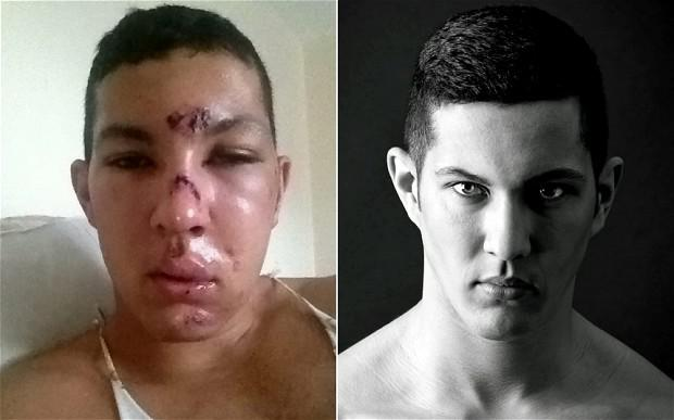 Richie Robins in hospital after being beaten, left, and a picture from his model lookbook