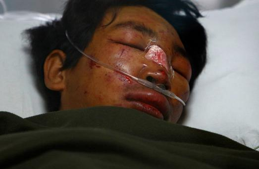 Dawa Tashi Sherpa lies on the bed of the Intensive Care Unit at Grandi International Hospital after he was rescued and airlifted from the avalanche site at Mount Everest in Kathmandu