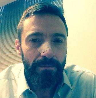 Hugh posted an image of his face on Instagram with a new bandage over his nose, confirming he found a dangerous growth on his face again.