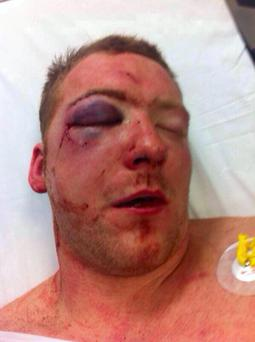 This image was posted Twitter by Sean Gleeson showing his eye injury. Photo: SeanGleese3