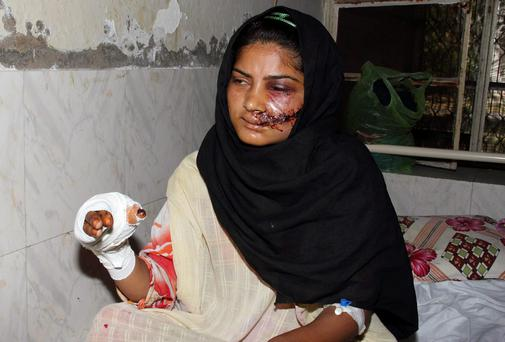 Saba Maqsood (18) sits on a hospital bed in Hafizabad in Punjab having survived being shot and thrown in a canal by her family for marrying the man she loved