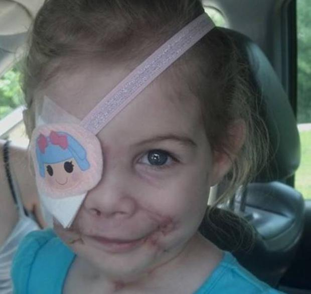 KFC has 'launched an investigation' after claim by family that 3-year-old, who had been mauled by three pit bulls, was forced to leave one of the chain's restaurants