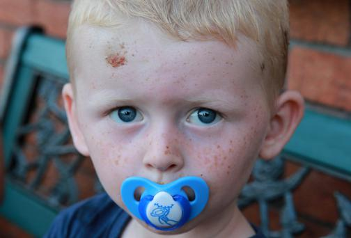 Jack Sage Foran, age 3, who was mauled by a dog near his home in Ballygraigue Court in Nenagh, Co Tipperary. Picture: Arthur Carron
