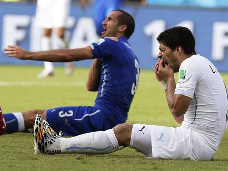 Chiellini after he was bitten by Suarez in Tuesday's game