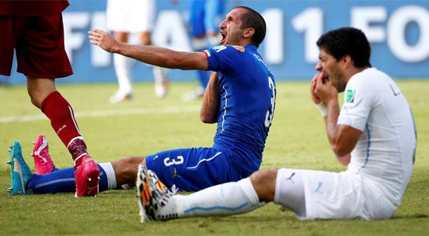 Luis Suarez and Giorgio Chiellini pictured after the World Cup bite