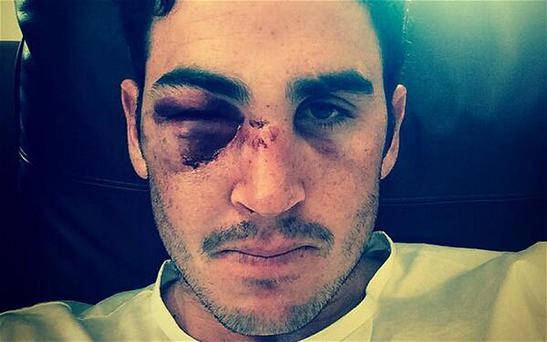 Cricketer Craig Kieswetter will undergo surgery after fracturing his cheekbone while playing for Somerset