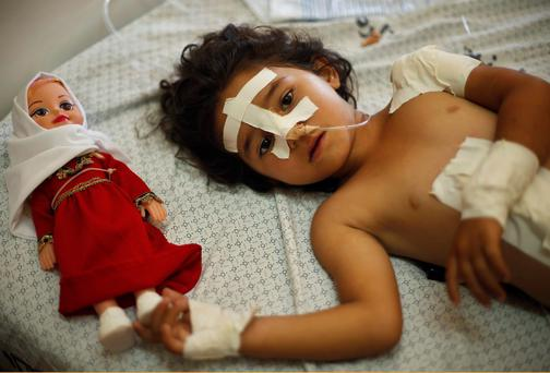 Four-year-old Palestinian girl Shayma Al-Masri, who hospital officials said was wounded in an Israeli air strike that killed her mother and two of her siblings, lies on a bed next to her doll as she receives treatment at a hospital in Gaza City. Reuters