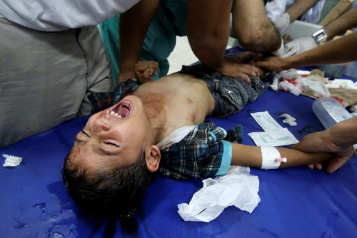Palestinian medics tend to a boy who they said was wounded in an Israeli shelling, at a hospital, in Rafah in the southern Gaza Strip. The Palestinian death toll rose above 500 on Monday as the army said it had killed 10 militants who tunneled into Israel, while Gazan officials said an Israeli tank shelled a hospital, killing civilians. Photo: REUTERS/Ibraheem Abu Mustafa