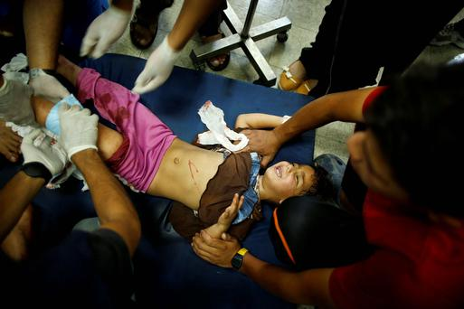 A Palestinian girl, whom medics said was wounded in Israeli shelling at a U.N-run school sheltering Palestinian refugees, is treated at a hospital in the northern Gaza Strip. Reuters