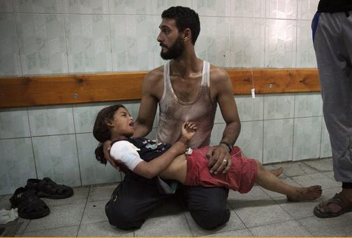 A Palestinian man holds a girl, whom medics said was injured in an Israeli shelling at a U.N-run school sheltering Palestinian refugees, at a hospital in the northern Gaza Strip. Reuters/Finbarr O'Reilly