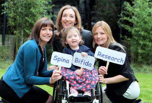 The Spina Bifida research team, from left, Eimear Culligan, Physiotherapist, Dr.Jane Leonard, Consultant Paediatrician and Sarah Governey,Occupational Therapist with three year old Lara Bayliss , from Bray, Co.Wicklow.
