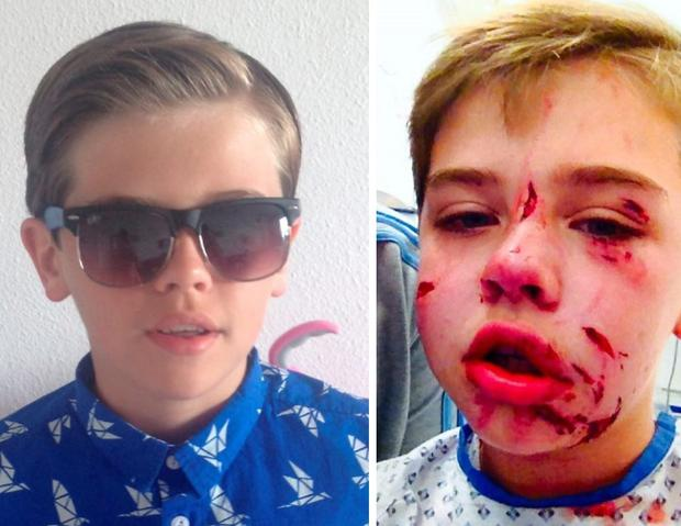Cameron before (left) and after his injuries