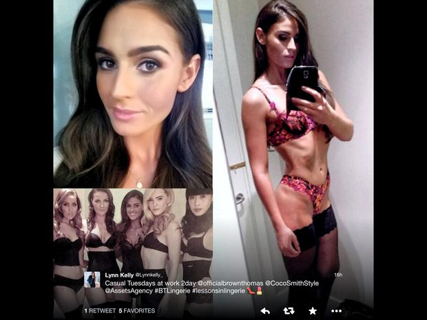 Assets Models defend 'healthy' model and former Miss Ireland Lynn Kelly after criticism of skinny pic posted online.