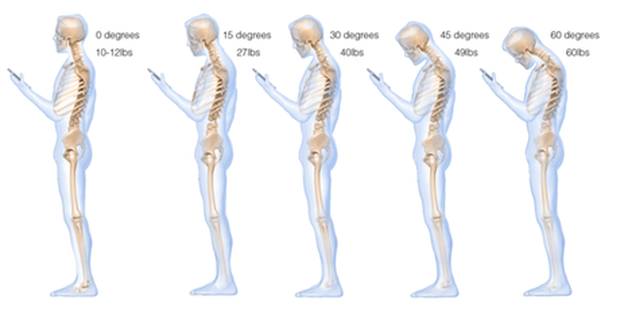 What texting does to your neck. Image credit: Surgical Technology International.