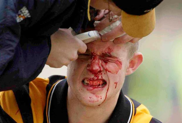 Kilkenny's Tommy Walsh is attended to by team doctor Tadhg Crowley during a 2003 National Hurling League game against Galway. Ray McManus / SPORTSFILE