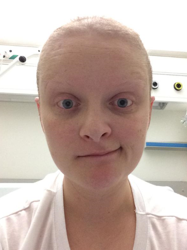 Louse McSharry tweets a photo of herself during her battle with Hodgkin's Lymphoma.