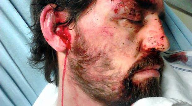Father-of-four James Martin after he was attacked by football thugs following the Old Firm derby between Celtic and Rangers. His wie Laurette released photos of her husband lying in hospital and urged the public to help police catch the attackers.