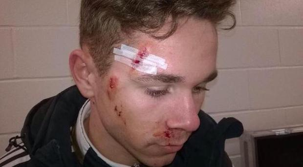 Sam Nicholson was left with a lot of facial abrasions following the tackle