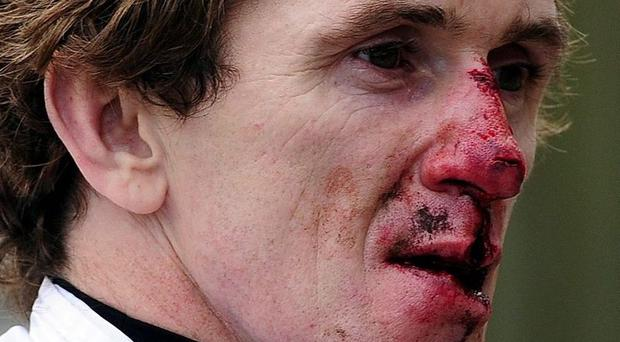 Tony McCoy shows the scares of battle