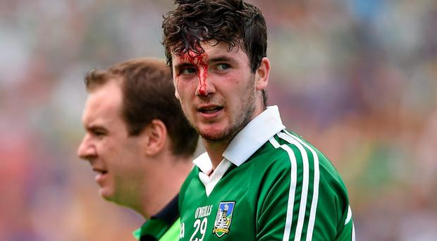 The new rules would work in a similar way to blood injuries, which caused Limerick's Declan Hannon to leave the pitch in last year's Championship Quarter-Final