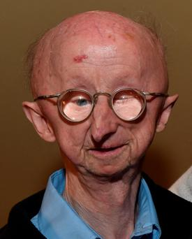 Disabled pensioner Alan Barnes who was mugged outside his home in Gateshead. Photo: Owen Humphreys/PA Wire