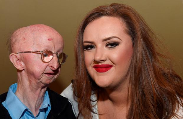 Pensioner Alan Barnes with Katie Cutler, as Richard Gatiss, 25, from Gateshead, pleaded guilty at Newcastle Crown Court to assault with intent to rob the disabled pensioner, whose plight prompted people to donate thousands of pounds to an online appeal. Photo: Owen Humphreys/PA Wire