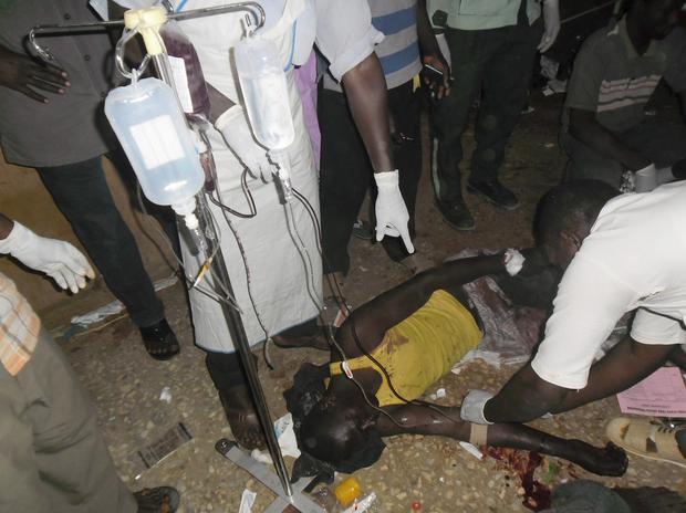 An injured person from a bus explosion receives treatment at a local hospital in Potiskum, Nigeria (AP Photo/Adamu Adamu )