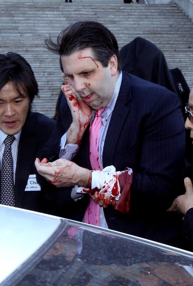 U.S. Ambassador to South Korea Mark Lippert leaves for a hospital in Seoul (AP Photo/Yonhap, Kim Ju-Sung)