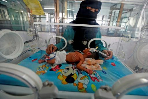 A doctor attends to a newborn baby in a special care unit at a hospital in Yemen's capital Sana'a. Food shortages and a lack of fuel have crippled services at the hospital, according to doctors. Photo: Reuters