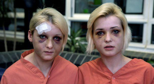 Nicole (left) and sister Amy Rice, Tallaght, who received bad facial injuries after allegedly getting a beating from two men at an apartment in Newbridge, Kildare. Picture: Arthur Carron