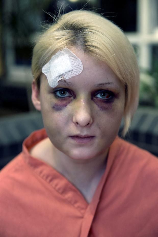 Nicole Rice, Tallaght, who recieved bad facial injuries after allegedly getting a beating from two men at an apartment in Newbridge, Kildare