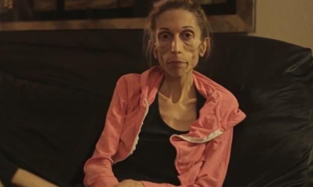 Rachael Farrokh (37) from California has lived with Anorexia Nervosa for more than 10 years