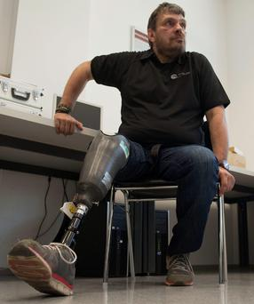 Wolfgang Rangger wears his artificial leg, which is capable of simulating the feelings of a real limb