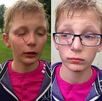 A Polish schoolboy has suffered an injury to his face following a fight with an eight-year-old boy in a suspected racist attack in Warrenpoint. Photo: Belfast Telegraph