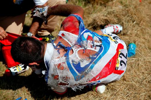 William Bonnet of France riding for FDJ is attended to after being involved in a crash with 65km remaining in stage three of the 2015 Tour de France from Anvers to Huy (Doug Pensinger/Getty Images)