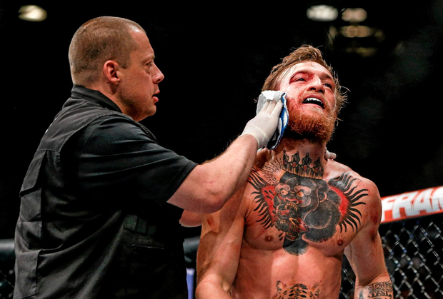 Conor McGregor is treated for a cut over the right eye at the end of the first round
