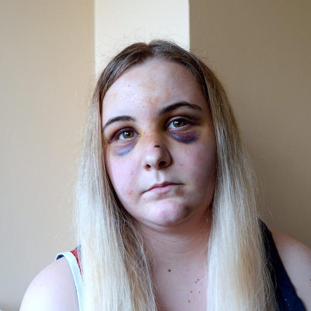 Diana Mongan, 17, with her injuries. Finglas, Dublin. Picture: Caroline Quinn
