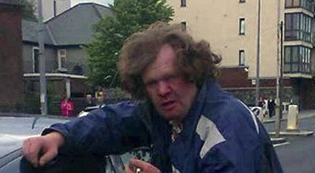 Danny Ward after an attack by a mob in Ringsend
