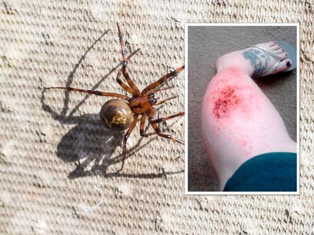 Aideen was bitten by a False widow spider