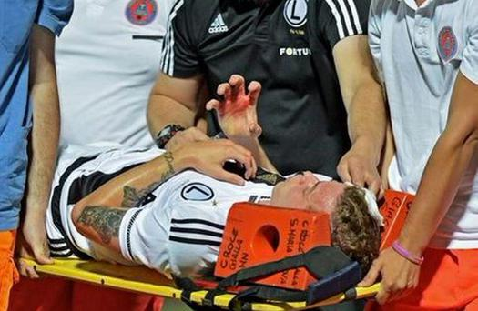 Legia Warsaw's Ondrej Duda is removed from the pitch after being struck by a stone