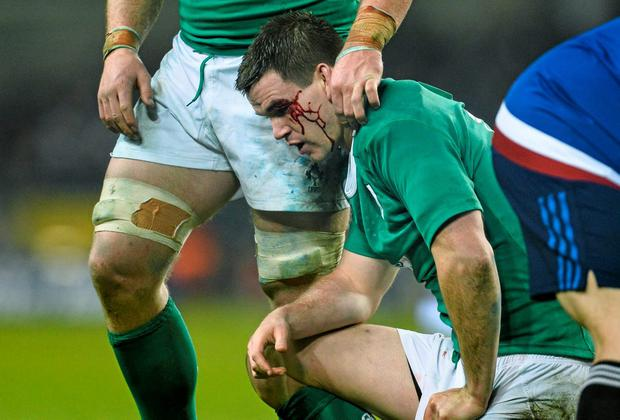 The medical staff are always extremely cautious when a rugby player, such as Johnny Sexton, above, suffers concussion