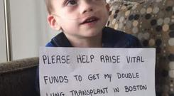 Little Cian needs $1million in order to have the life-saving transplant
