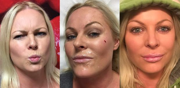 Amanda Brunker before, during and after botox and collagen injections
